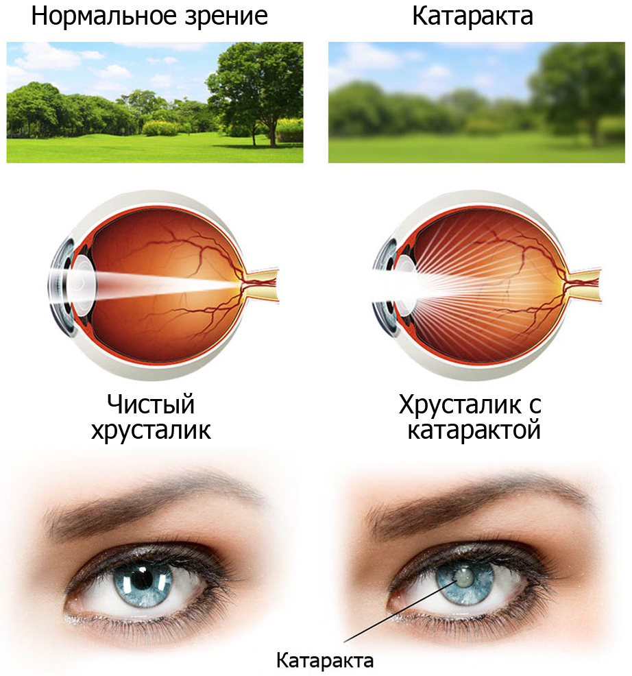 Глаукома: что это за болезнь и как ее лечить | медицинский портал spacehealth