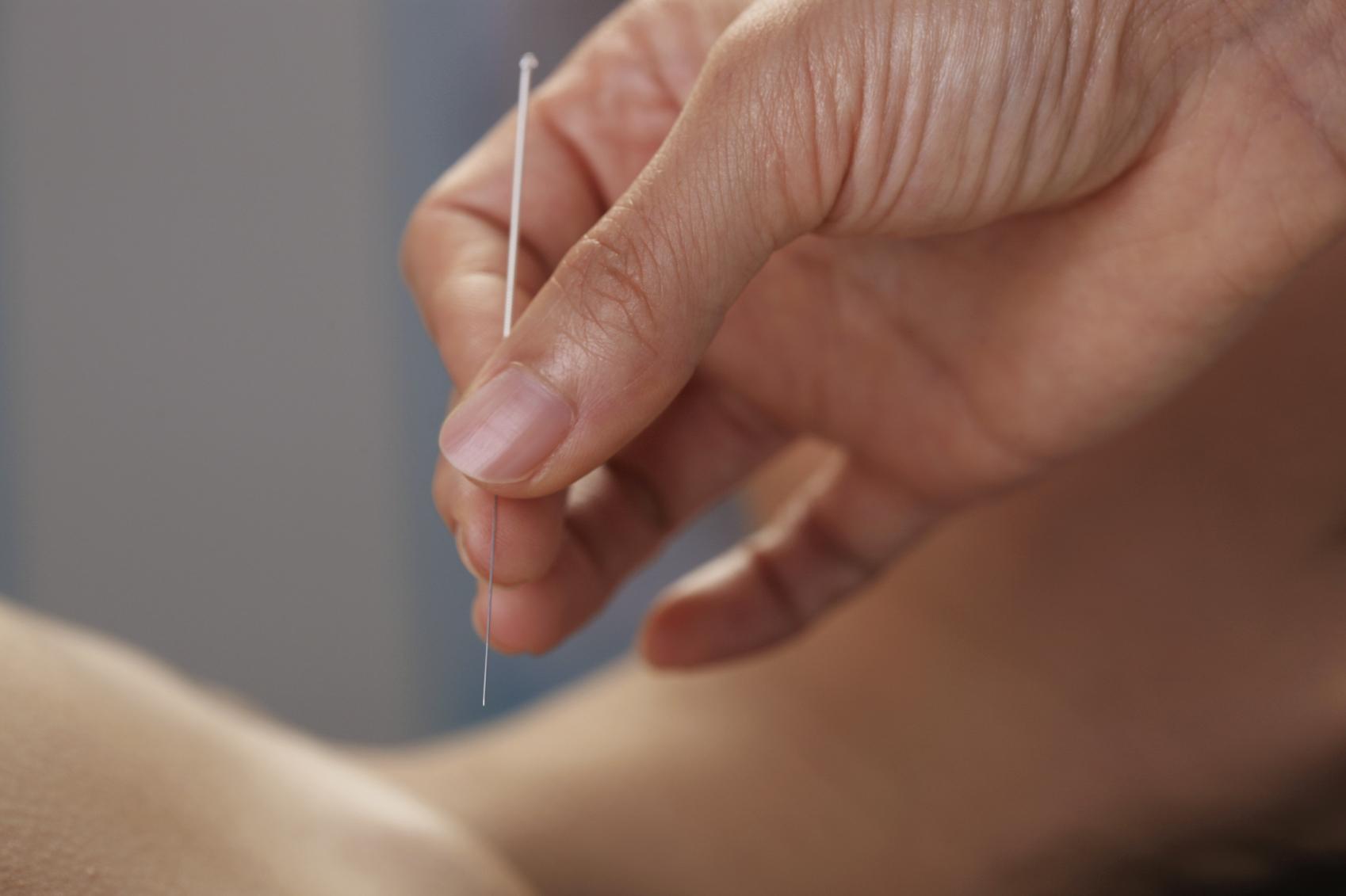 Рефлексотерапия — что это?