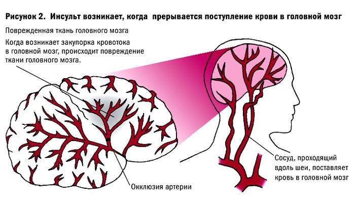 В чем разница между инфарктом и инсультом