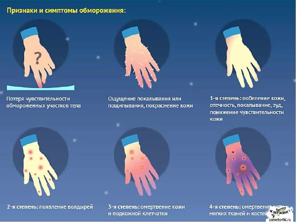 Обморожение - признаки и первая помощь - симптомы и лечение на krasgmu.net