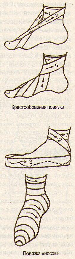 § 9 виды повязок и правила их наложения