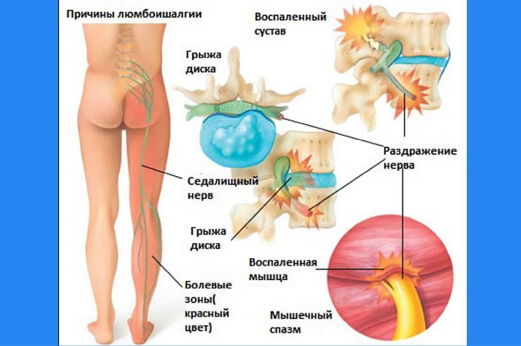 Люмбалгия: что это такое, лечение в поясничном отделе позвоночника, симптомы