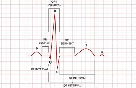 Ускоренный синусовый ритм сердца что это такое - медспециалист