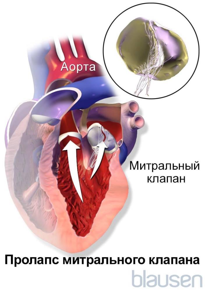 Пролапс митрального клапана 1 степени с регургитацией: симптомы и лечение