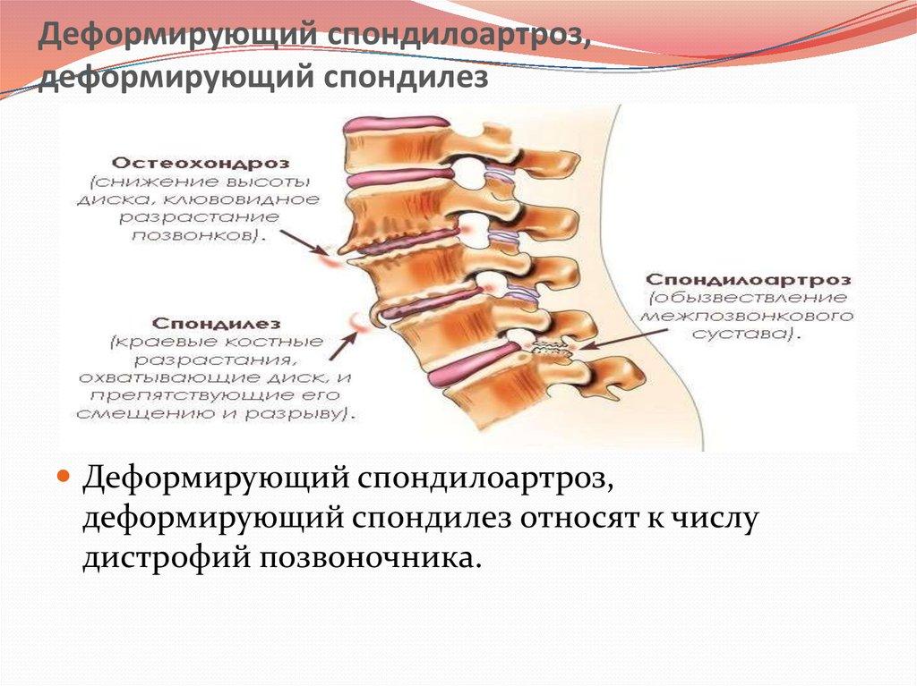 Спондилоартроз поясничного отдела позвоночника:  что это такое, симптомы