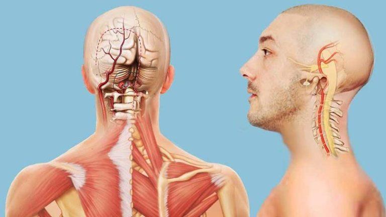 Гипоплазия левой/правой позвоночной артерии — что это такое?