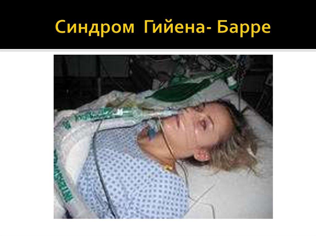 Синдром гийена-барре: симптомы, причины и лечение