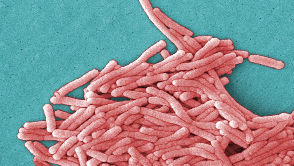 Легионеллез, легионелла: заражение, симптомы, лечение - обзор от бактериолога