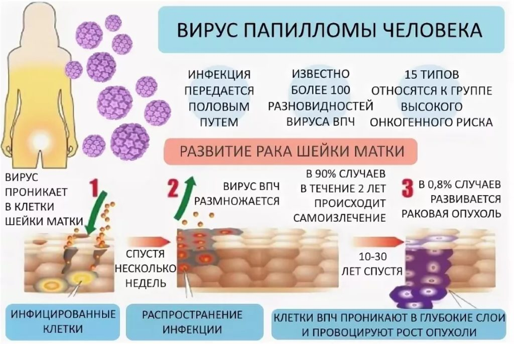 Вирус папилломы у женщин и мужчин — причина рака