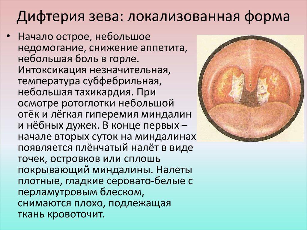 Дифтерия: симптомы у взрослых, лечение, вакцинация, прививка