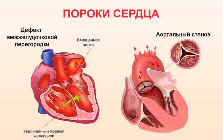 Симптомы пороков сердца: признаки и проявления врожденных и приобретенных, как диагностика помогает определить впс и ппс?