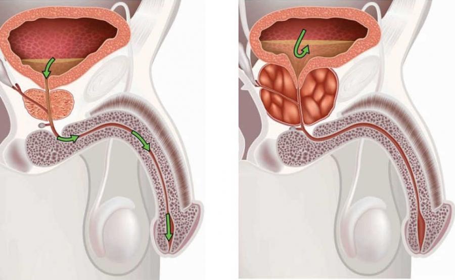 Лечение аденомы простаты у мужчин медикаментозно и народными средствами