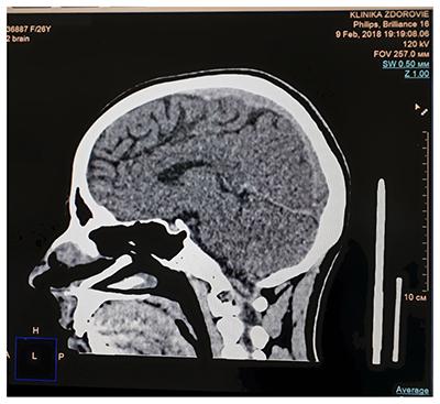 Кт головного мозга: показания и методика проведения диагностики