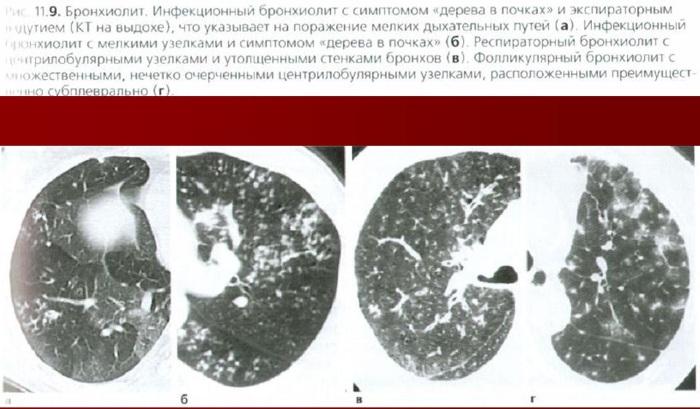 Бронхиолит у взрослых - симптомы и лечение