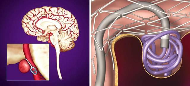 Аневризма сосудов головного мозга-причины,симптомы, лечение