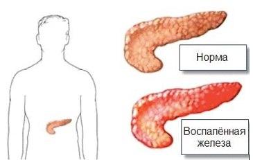 Поджелудочная железа, симптомы, признаки и лечение. заболевания