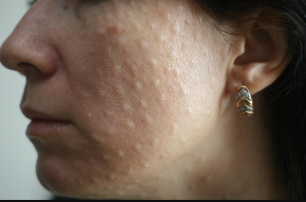 Лазерная биоревитализация лица * что это такое, гиалуроновой кислотой, противопоказания, фото