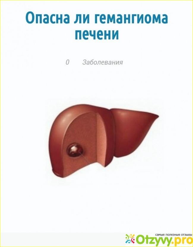 Гемангиома печени: причины возникновения, лечение, симптомы, фото и удаление