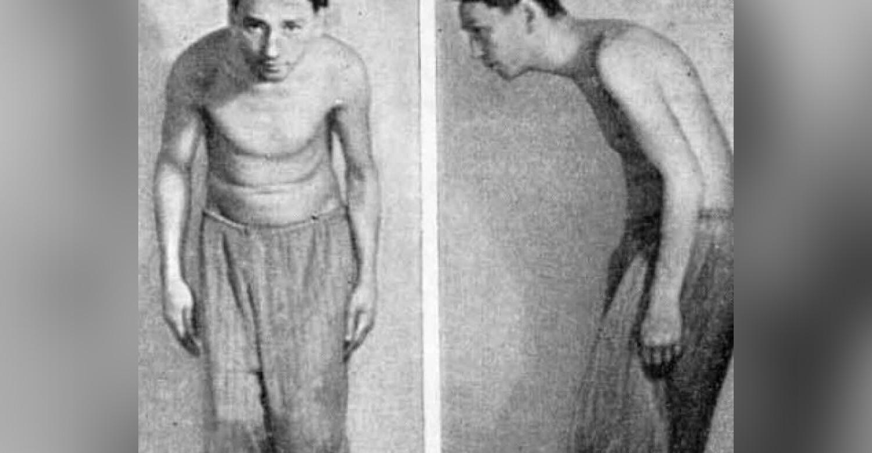 Болезнь бехтерева у мужчин: причины, симптомы, способы лечения