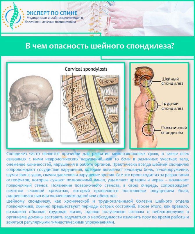 Спондилез и спондилоартроз - разница между болезнями, симптомы и лечение