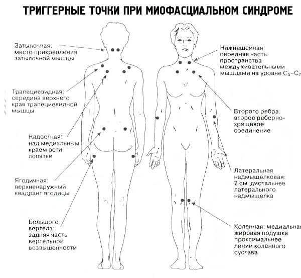 Лечение миофасциального синдрома пояснично-крестцового отдела позвоночника