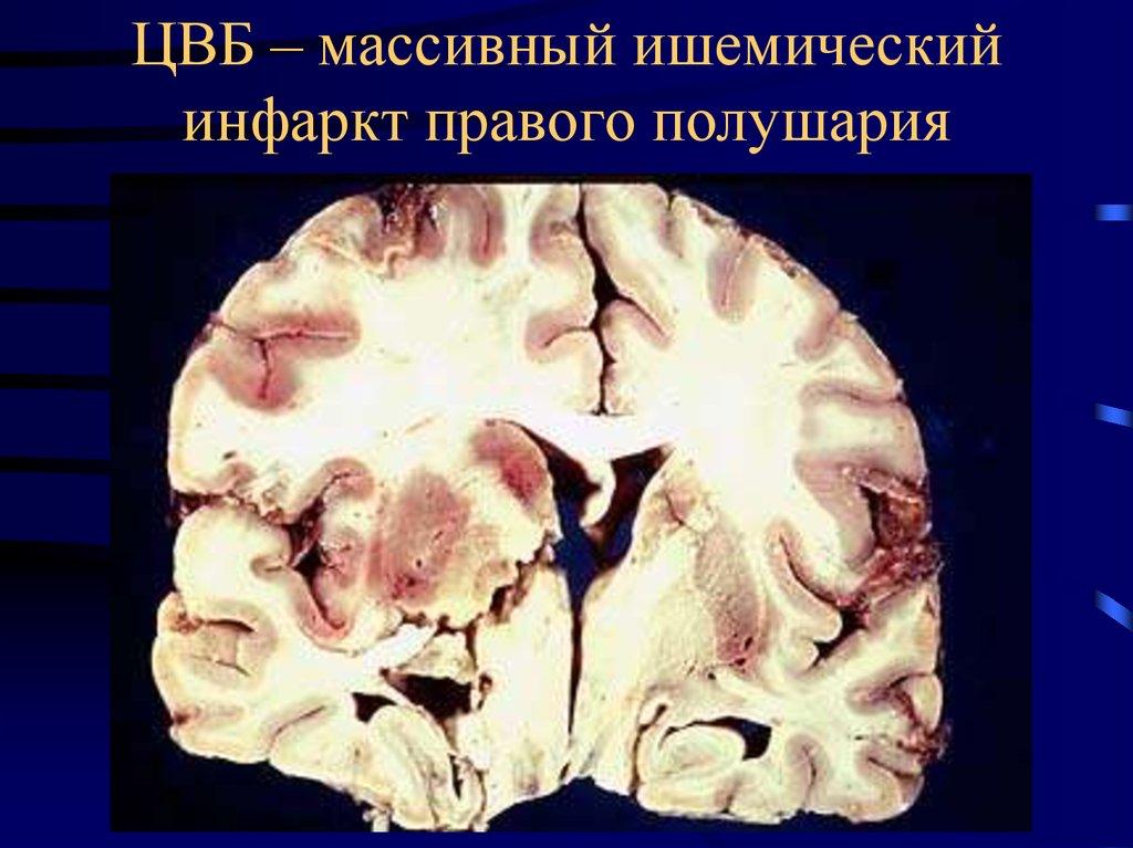 Инфаркт головного мозга – состояние, грозящее жизни человека