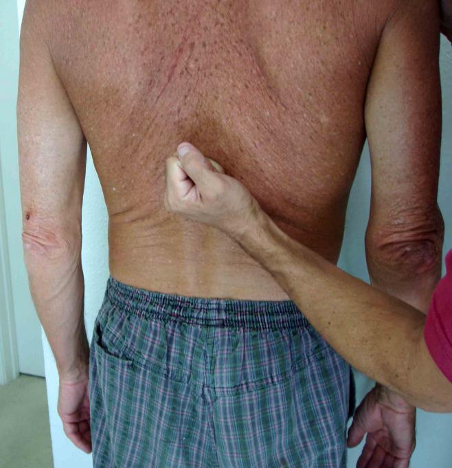 Синдром пастернацкого отрицательный с обеих сторон. симптом пастернацкого — что это такое, диагностика и лечение