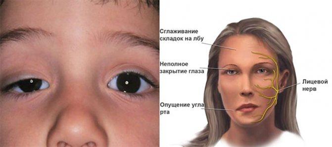 Глазная миастения