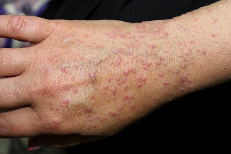 Микоз, грибковые заболевания, грибок кожи, глубокие микозы. как лечить грибок? таблетки от грибка