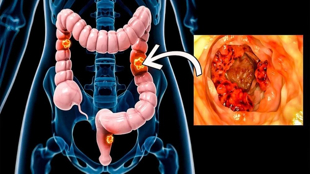 Заболевания кишечника: симптомы и признаки, болезни, причины возникновения
