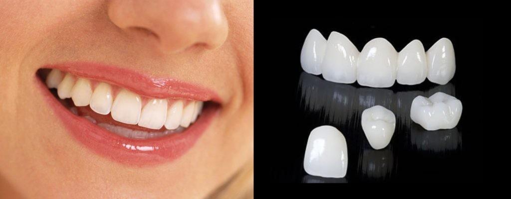 Все о зубных коронках: фото, описание разновидностей, установка на зубы