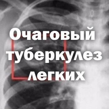 Туберкулома легких – что это и последствия