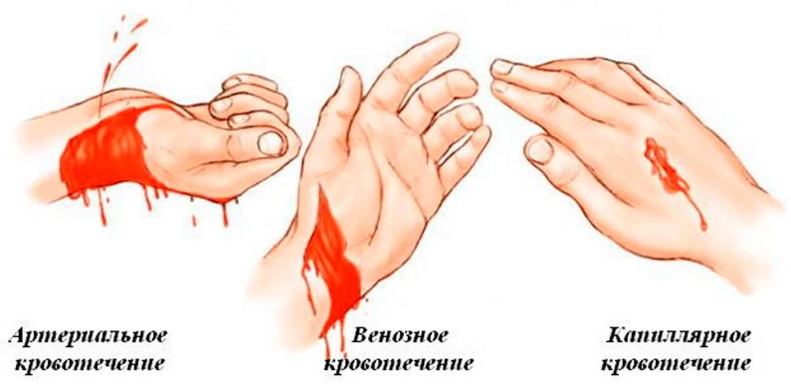 Виды паренхиматозного кровотечения, первая помощь
