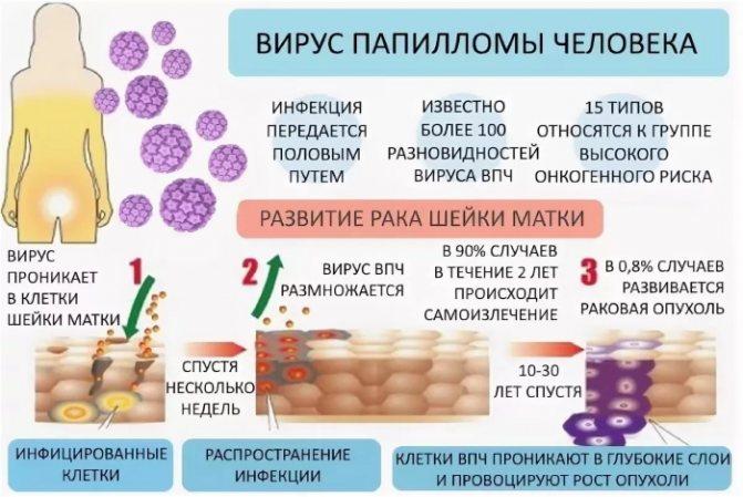 Впч 16 и 18 типа у женщин - пути заражения и передачи, диагностика, опасность развития онкологии