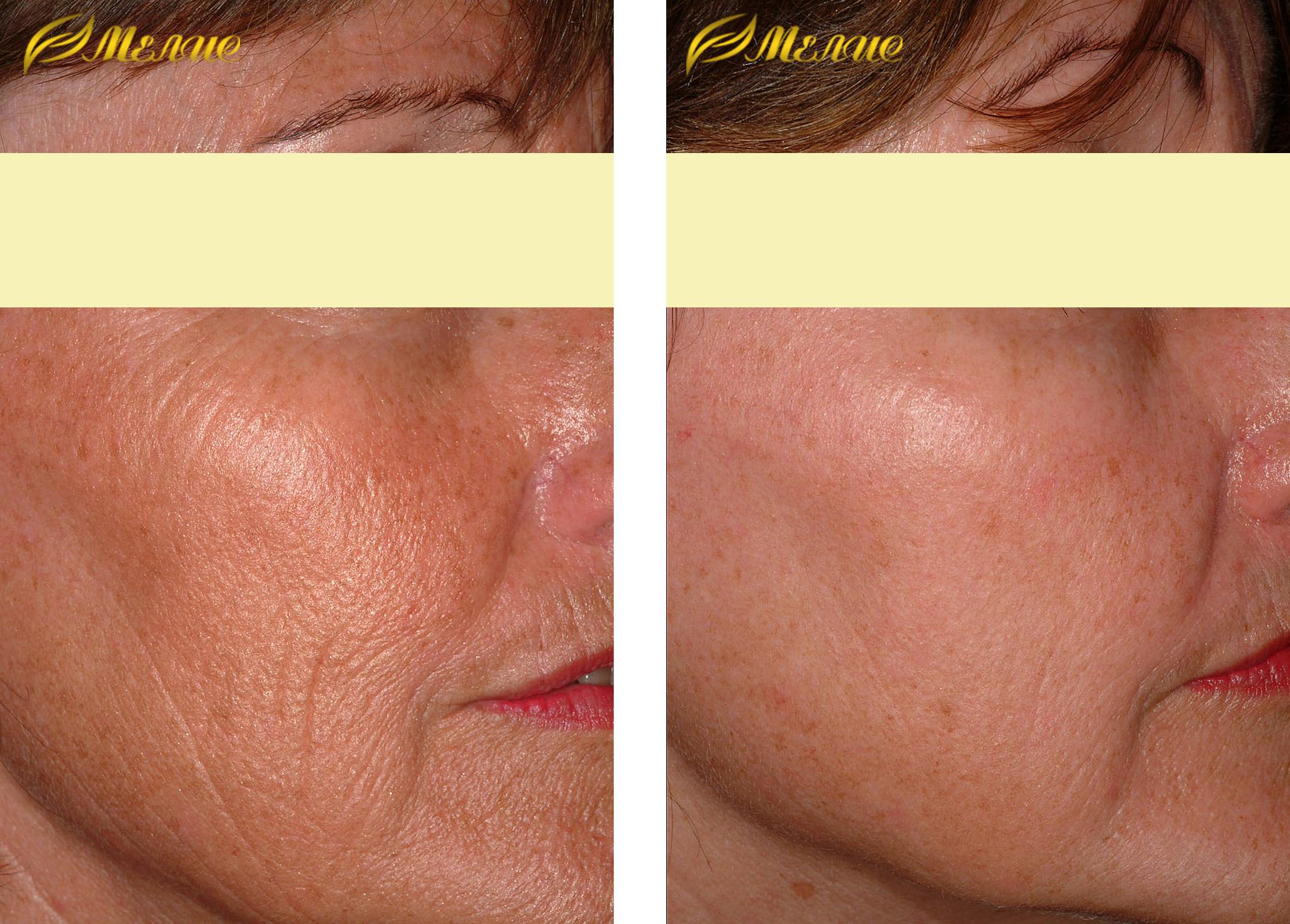 Что такое лазерное омоложение лица - плюсы и минусы, результат до и после - pro-lico.ru