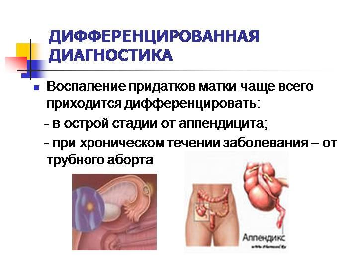 Аднексит (сальпингоофорит): симптомы и лечение у женщин