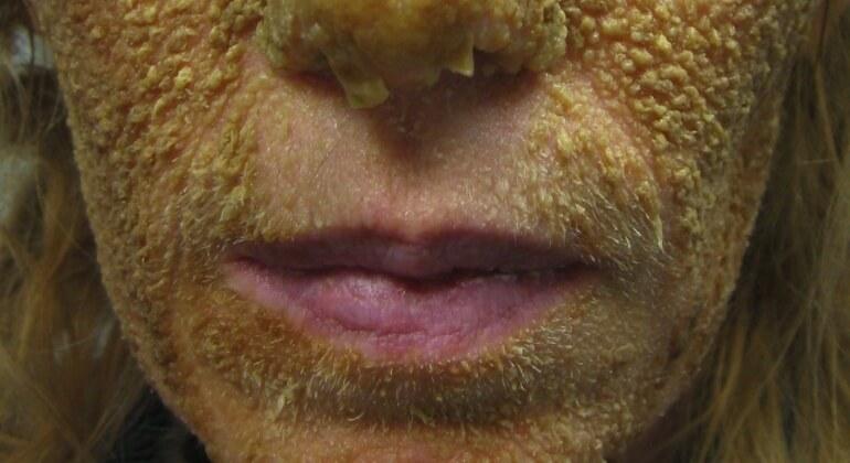 Фолликулярный гиперкератоз у ребенка и взрослого - причины, симптомы, лечение кожи кремами и мазями