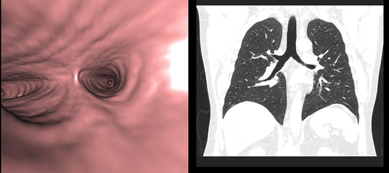 Когда назначают томографию легких