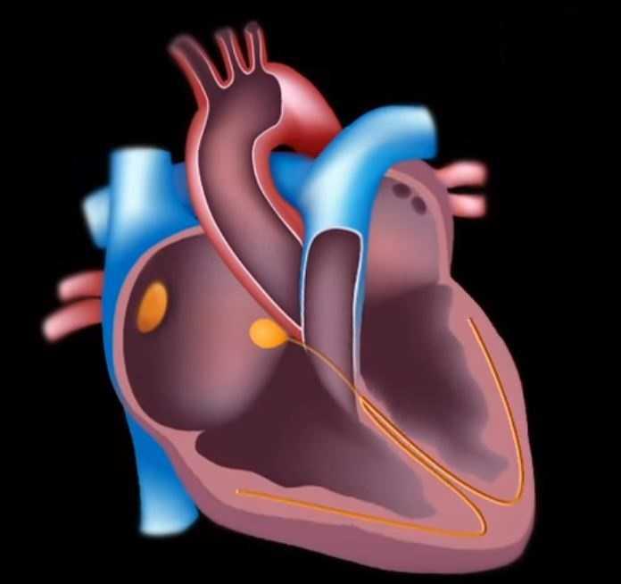 Аритмия сердца – что это такое и как лечить