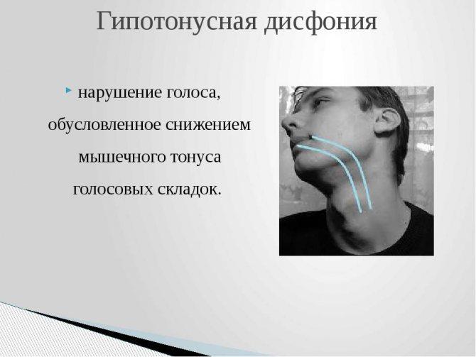 Дисфония