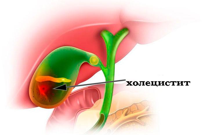 Холецистит – классификация, симптомы, лечение, профилактика