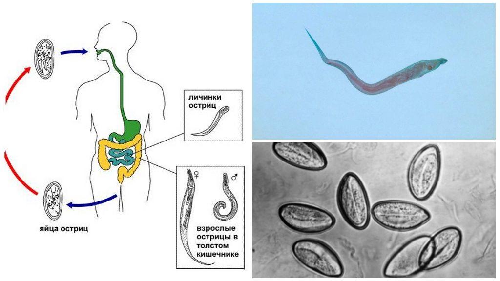 Энтеробиоз - симптомы  и лечение