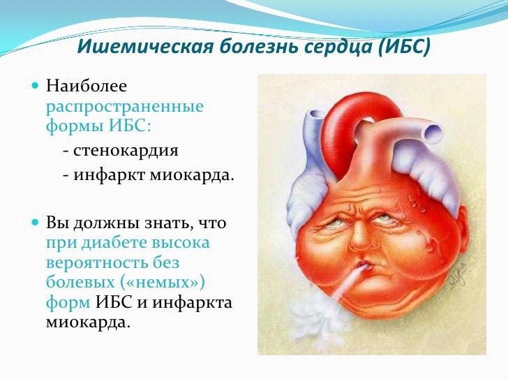 Ишемия - что это такое и чем опасна болезнь средца