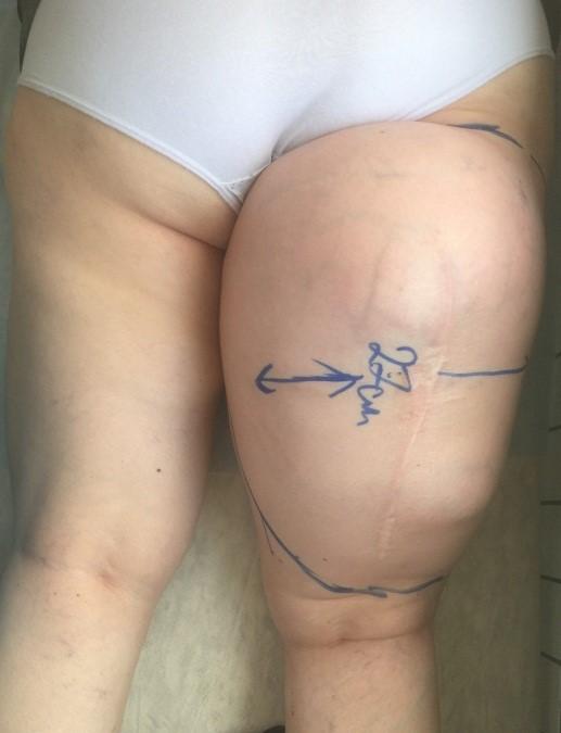 Саркома: первые симптомы, фото, стадии и лечение