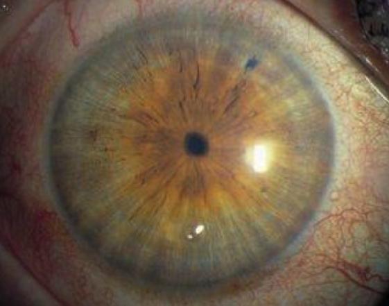 Миоз глаза - что это, причины | что такое реактивный миоз | симптомы