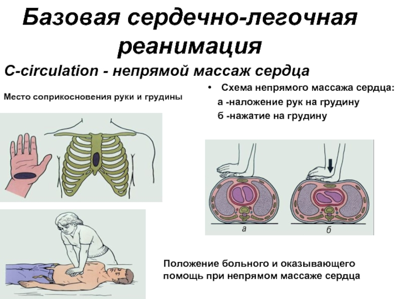 Сердечно-лёгочная реанимация — википедия