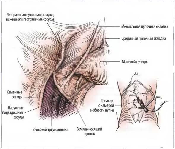 Что такое паховый канал: его анатомия и строение