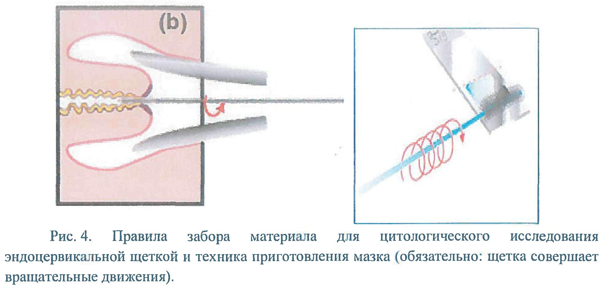Соскоб с шейки матки   университетская клиника