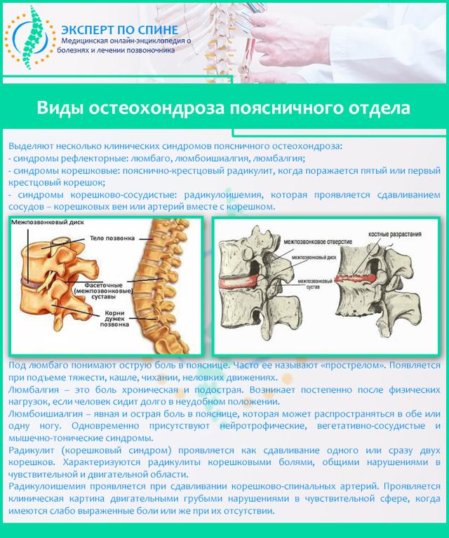 Люмбалгия поясничного отдела позвоночника: лечение