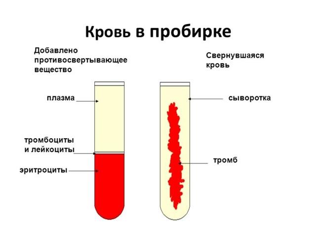 Хилез крови - причины, лечение, диета, народные средства